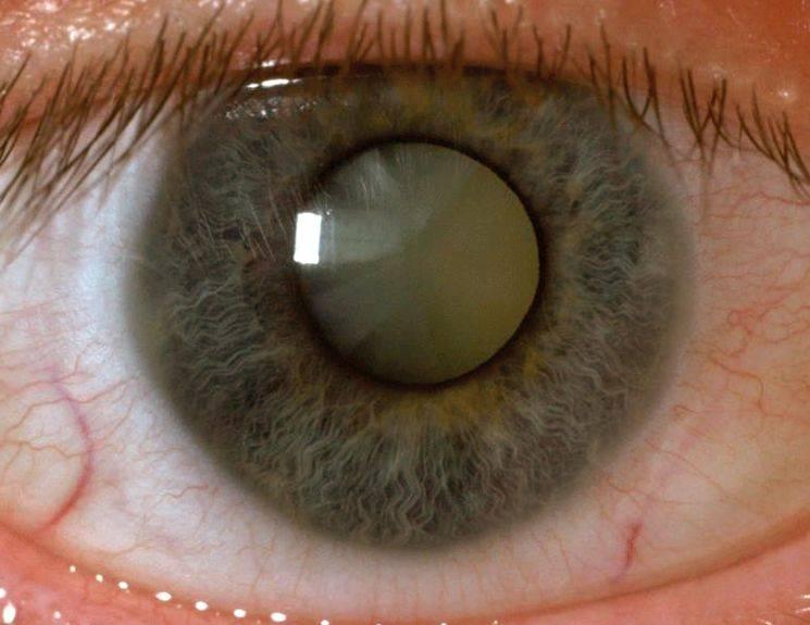 Помутнение роговицы глаза: лечение, причины