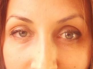 Причины одностороннего нарушения зрения, лечение и профилактика