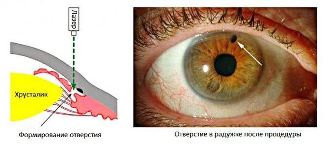 Способ проведения лазерной десцеметогониопунктуры после ранее проведенной операции непроникающей глубокой склерэктомии