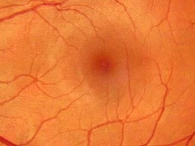 Что такое ангиосклероз сосудов сетчатки: причины и способы лечения заболевания