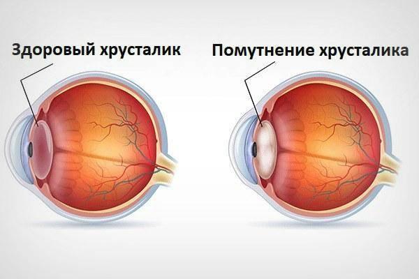После замены хрусталика глаз видит мутно - причины и что делать