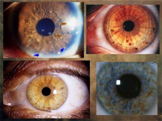 Пятна на радужке глаза человека причины появления и их значение