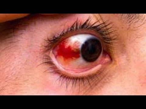 Почему появляются кровоизлияния в глаз; их виды, причины и симптомы, что делать для лечения и профилактики