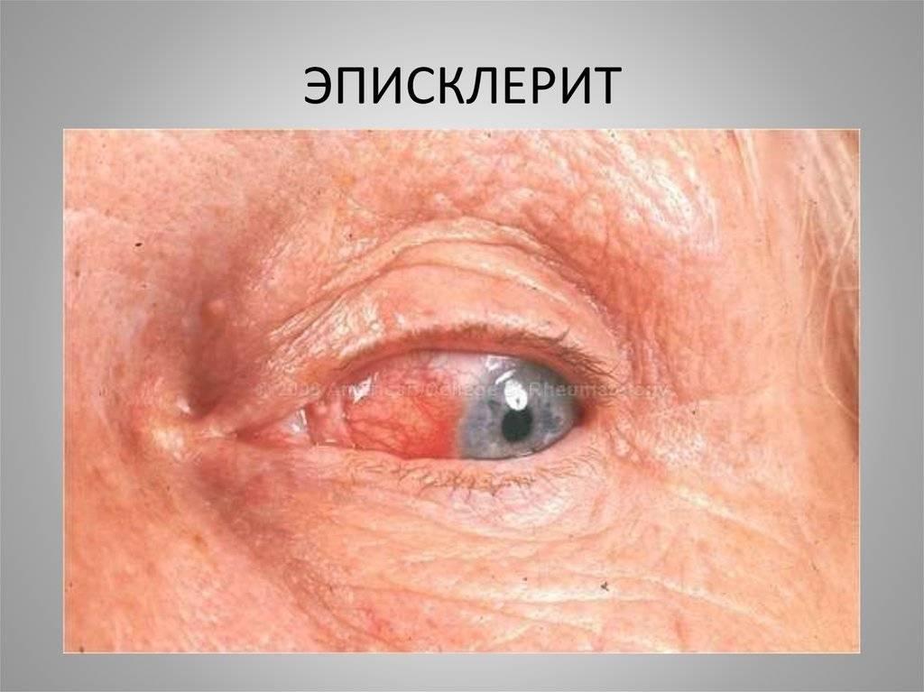 Эписклерит глаза – причины, симптомы и лечение (фото)
