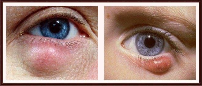 Шишка на веке глаза - что это, причины, лечение, последствия
