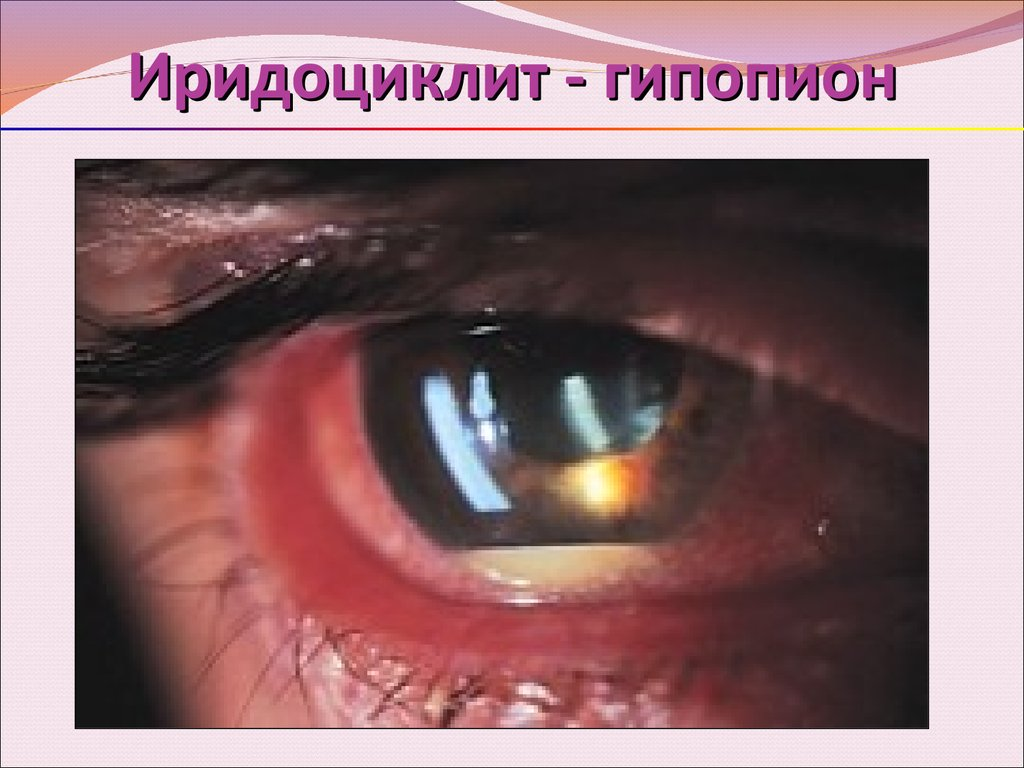 Иридоциклит: причины возникновения и симптомы, лечение в домашних условиях и с помощью медикаментов
