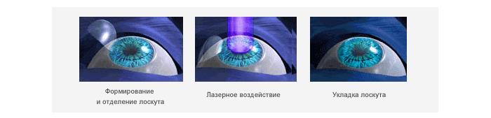 10 ограничений после лазерной коррекции зрения