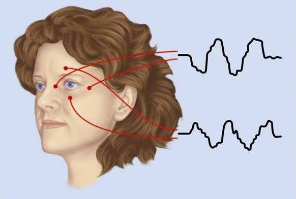 Электрофизиологическое исследование сердца (эфи): типы, показания, процедура