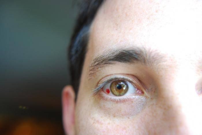 Почему лопаются сосуды в глазах - причины: что делать постоянно, причины и лечение