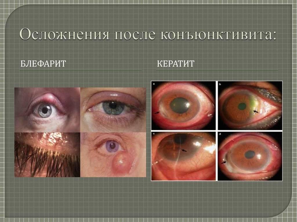 """Конъюнктивит у новорожденных: виды и симптомы болезни - """"здоровое око"""""""