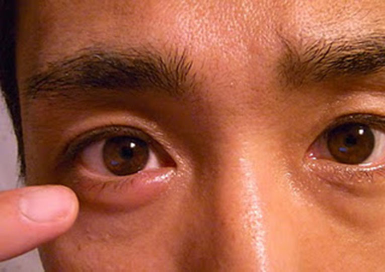 Ячмень на глазу: чем и как лечить, причины, симптомы, как выглядит (фото)