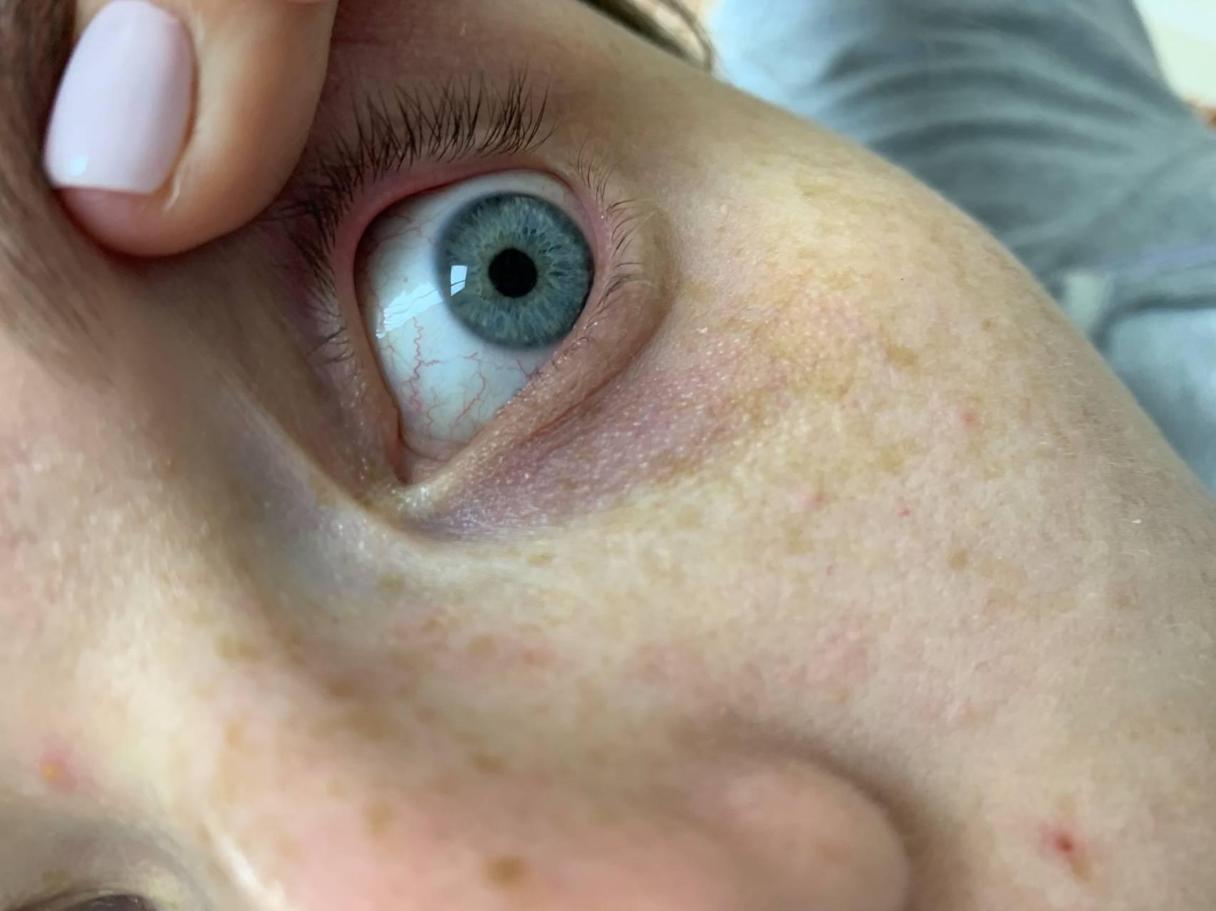 Синие белки глаз причины. из-за чего бывают голубыми белки глаз? симптомы, диагностика и лечение - про здоровье