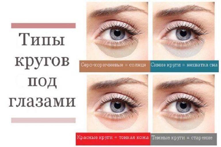Синие круги под глазами, причины у женщин, с чем связаны