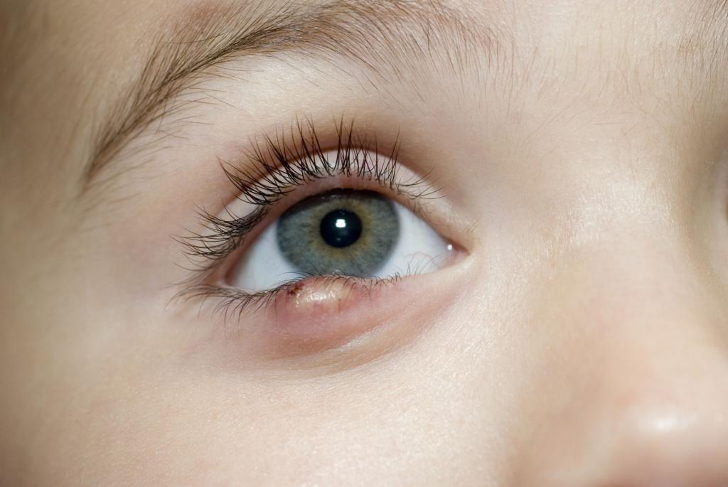 Синдром гольденхара: что это, причины, симптомы, лечение и операция