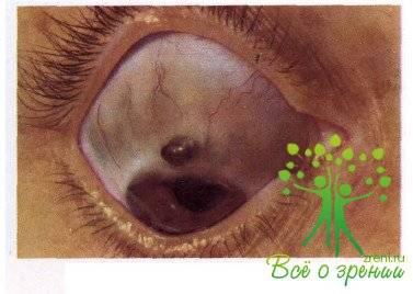 Хемоз конъюнктивы глаз: что это, cимптомы и лечение