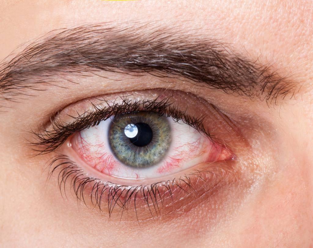 Синдром сухого глаза: симптомы и лечение народными средствами, как правильно лечить в домашних условиях, что помогает от болезни