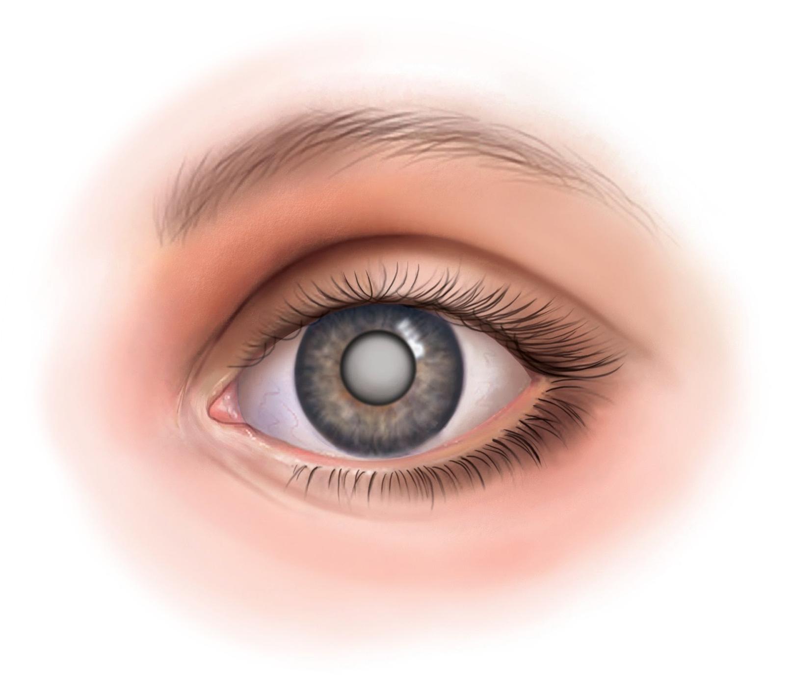 Как начинается катаракта глаза – основные симптомы — глаза эксперт