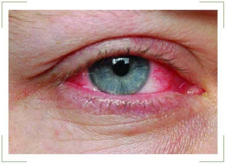 Красные глаза после сна - почему краснеют белки глаз