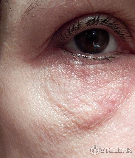 Трещины и шелушение кожи вокруг глаз - причины, чем и как лечить, народные средства