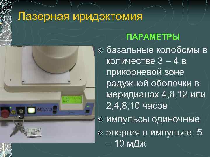 """Лиэ - лазерная иридотомия (иридоэктомия) при глаукоме: видео операции, отзывы и лучшие цены в москве! - moscoweyes.ru - сайт офтальмологического центра """"мгк-диагностик"""""""