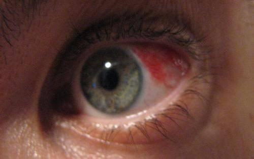 Что делать при ушибе глаза – признаки и лечение травмы