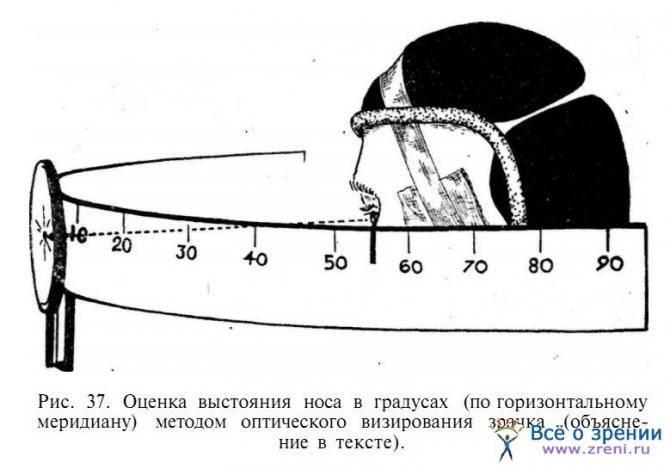 Что такое периметрия глаза и как ее проводят