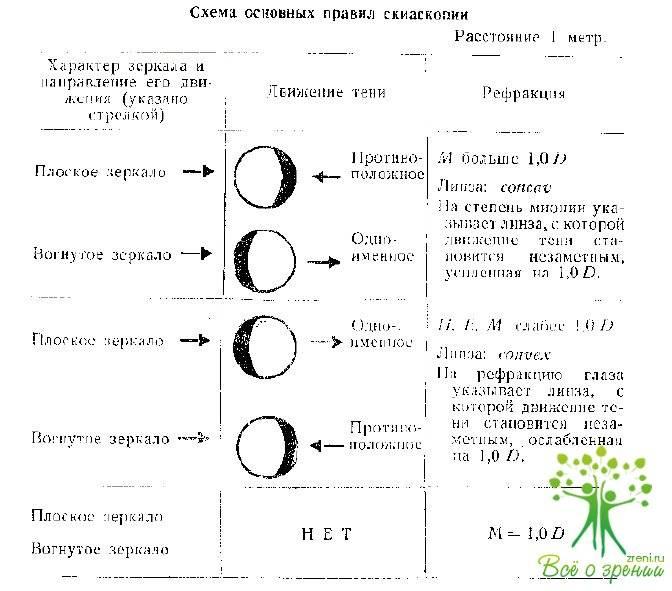Скиаскопия: методика проведения и расшифровка результатов