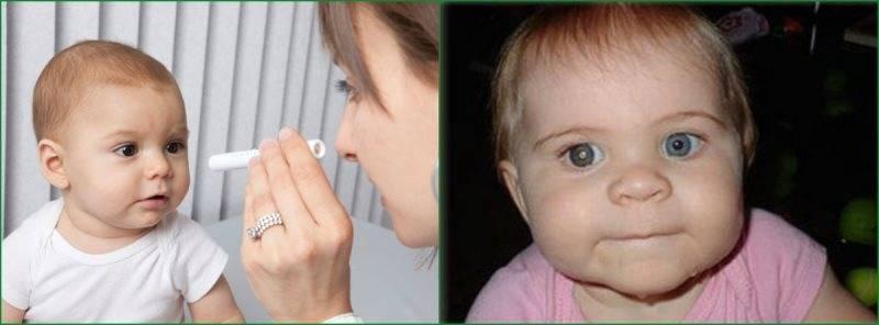Врожденная катаракта у детей: причины, виды лечения у новорожденных и грудничков