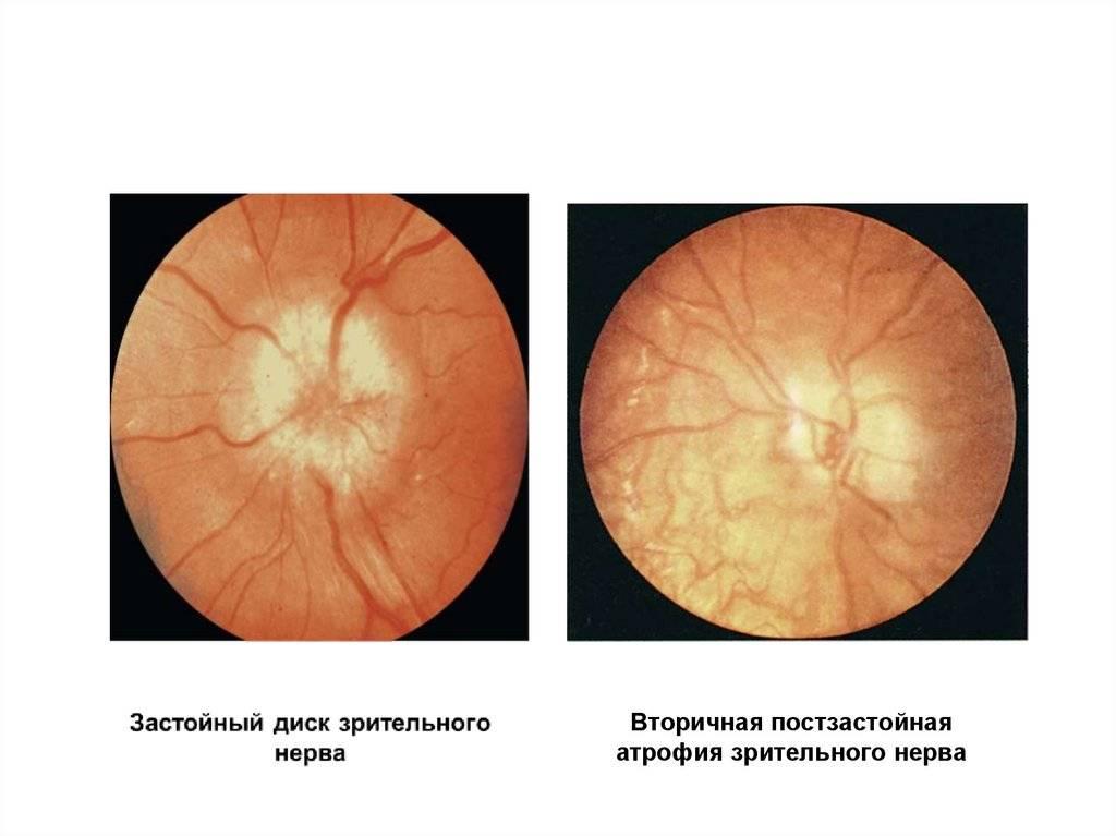 Лечение атрофии зрительного нерва в израиле: методы, стоимость