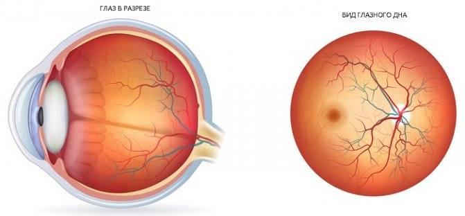 Глазное дно - как проверяют, что показывает осмотр