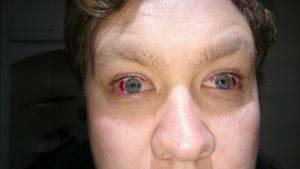 """Вытек глаз: какие могут быть причины - """"здоровое око"""""""