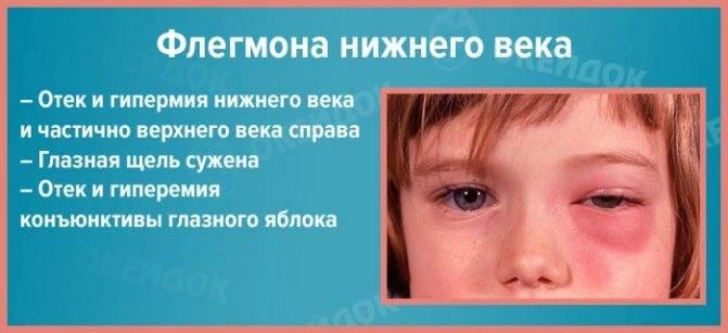 Флегмона: что это такое, фото, лечение, симптомы, причины, классификация