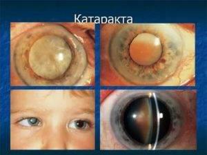 Катаракта: последствия болезни, чем опасна патология, что будет если не лечить заболевание
