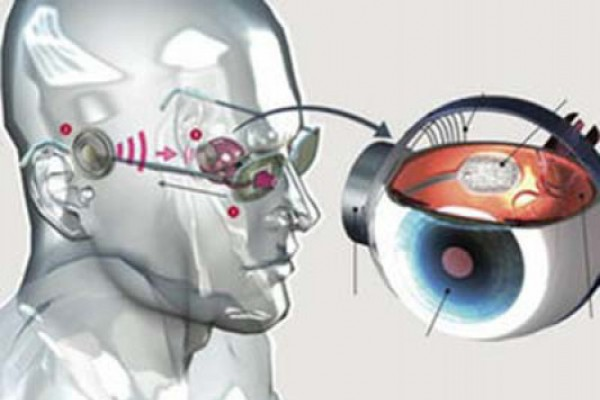 Бионические глаза и нейропротезы: как технологии возвращают зрение слепым :: рбк тренды