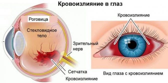 Кровоизлияние в глаз: причины и лечение, что делать, лечение стекловидного тела