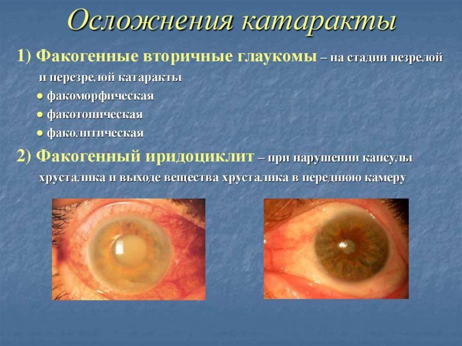 Вторичная глаукома - что это, причины и лечение