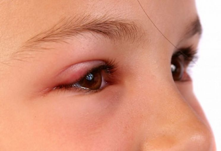 Первые признаки ячменя на глазу в начальной стадии - что делать