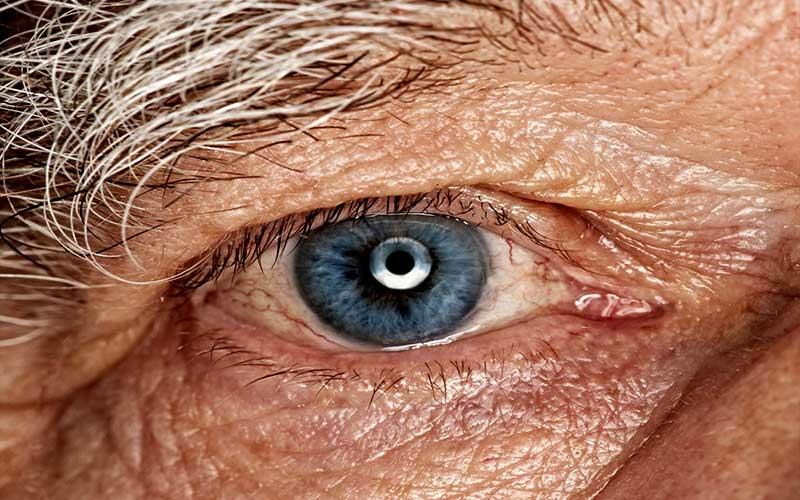 Катаракта у пожилых: причины, симптомы, лечение