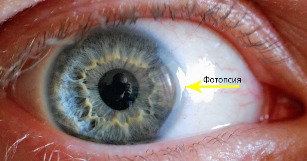 Фотопсия: причины заболевания, симптомы и возможное лечение глаз
