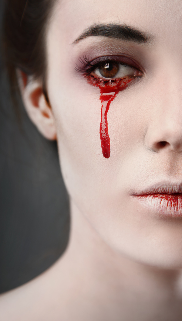 Кровь в глазу как убрать