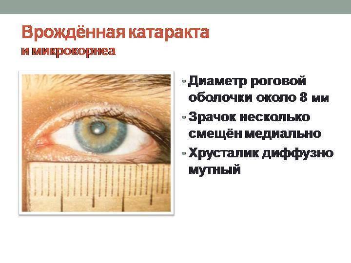 Врожденная катаракта - признаки, симптомы, лечение. офтальмологический портал vseozrenii.