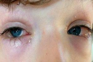 У ребенка красный глаз без гноя - чем лечить покраснение и если гноятся, лечение, если воспалились, что делать, почему опухли и сопли