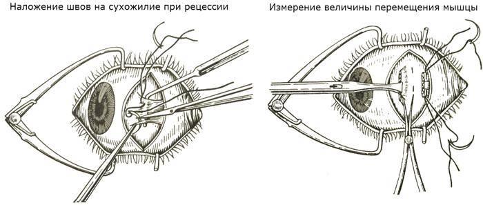 С какого возраста можно делать операцию на глаза косоглазие tdfarm