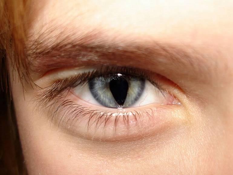 Колобома радужки - зрачка и оболочки глаза, врожденная у новорожденных, что это