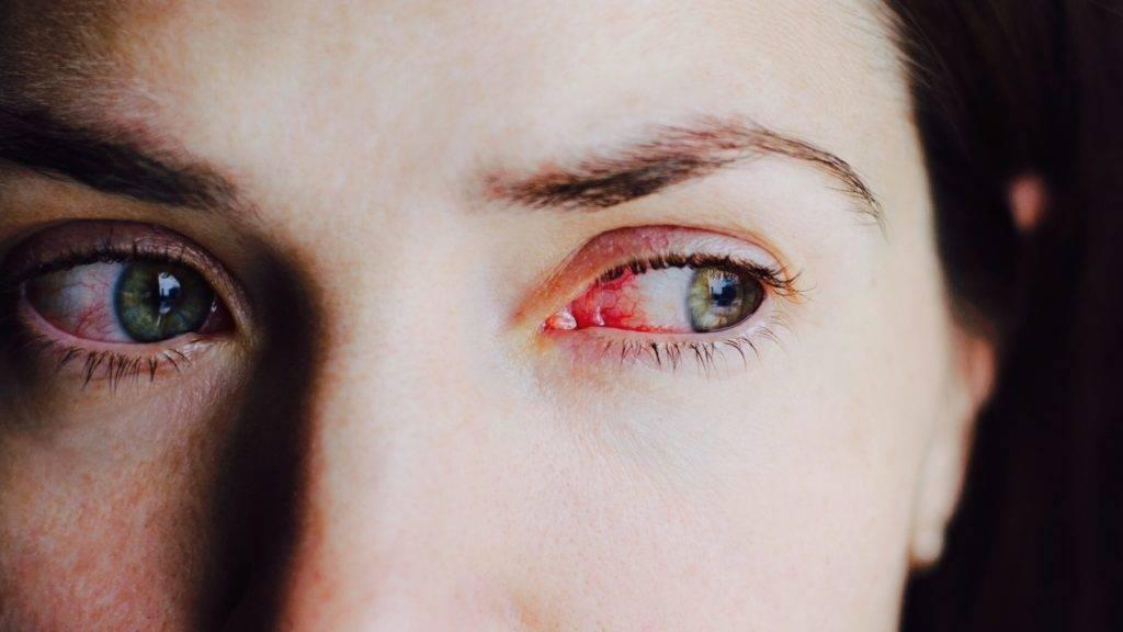 Как избавиться от слезоточивости глаз: в домашних условиях народными средствами