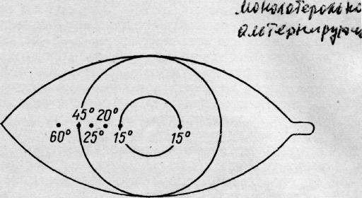 Угол косоглазия методу гиршбергу: как определить