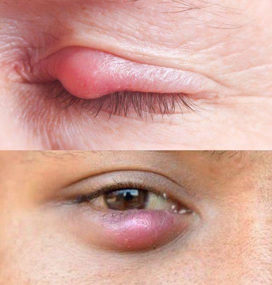Чем и как лечить ячмень на глазу на нижнем веке oculistic.ru чем и как лечить ячмень на глазу на нижнем веке