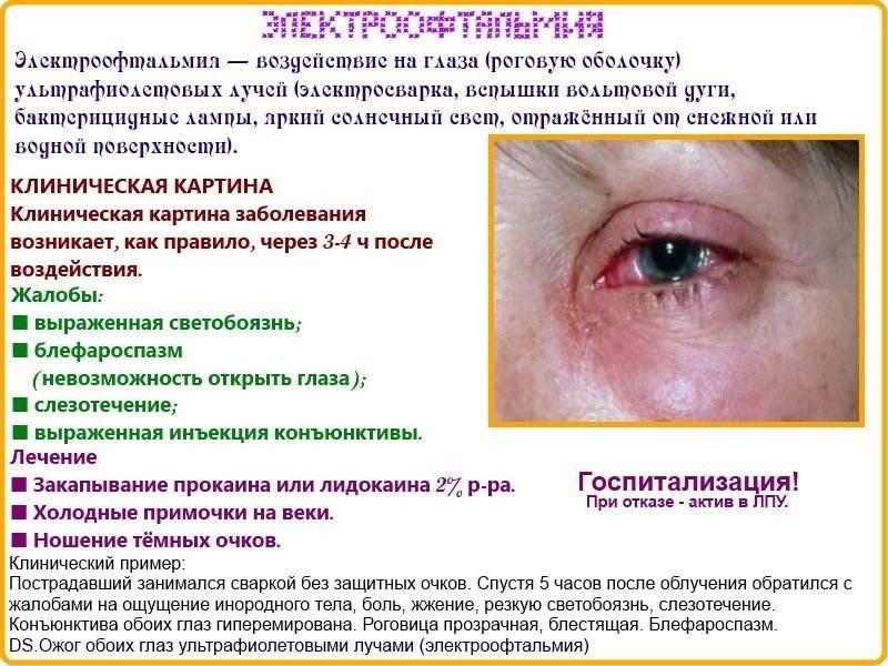 Капли для глаз после сварки - список эффективных