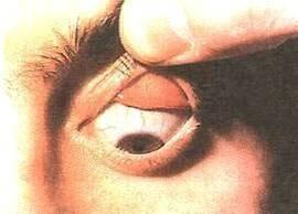 Ощущение инородного тела в глазу: причины, что делать