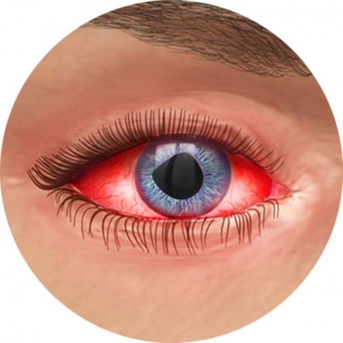 Гиперемия конъюнктивы глаз и лечение конъюнктивального покраснения